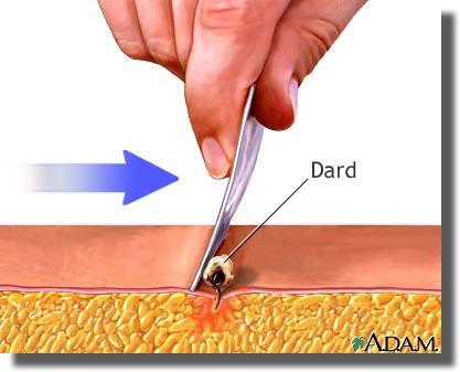 Comment enlever un dard